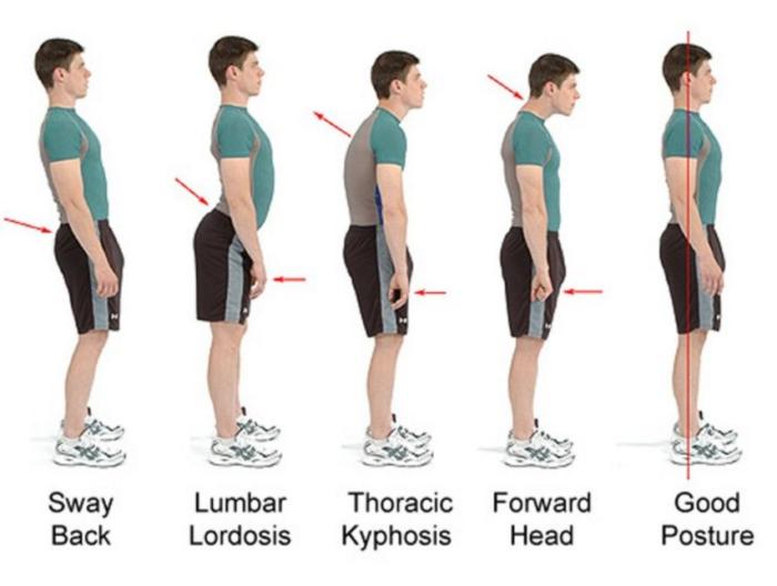 posture corrector braces